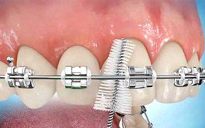 Tips Merawat Gigi yang Memakai Behel