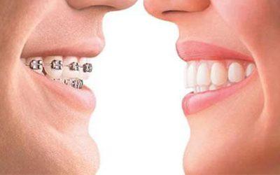 Alasan Orang Memakai Kawat Gigi atau Behel