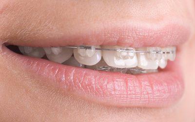 Hukum Menggunakan Kawat Gigi dalam Islam