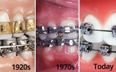 Sejarah dan Penemu Kawat Gigi atau Behel