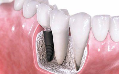 Dental Implan atau Implan Gigi
