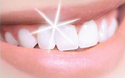 Mengapa Kita Perlu Memutihkan Gigi?