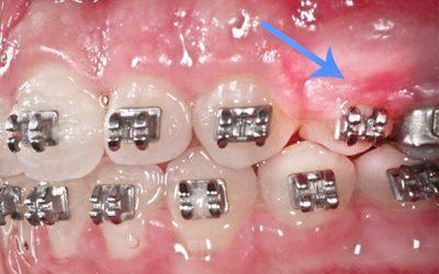 Waspadai Dampak Lain Penggunaan Kawat Gigi atau Behel