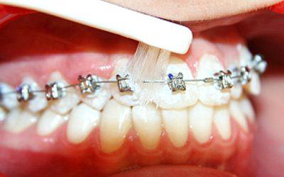 Begini Cara Merawat Gigi yang Memakai Behel