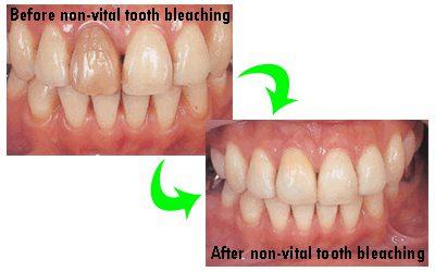 Cara Memutihkan Gigi Yang Mati