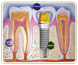 gigi-implants-