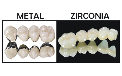 Porcelain Fused to Metal vs Zirconia