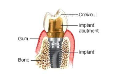 implant6