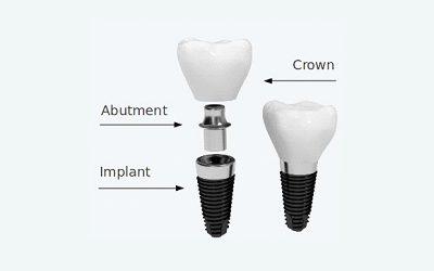 implant7