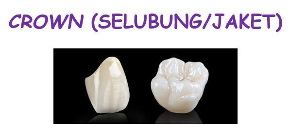 macam-macam gigi tiruan1