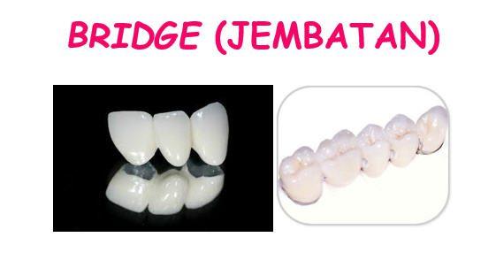 macam-macam gigi tiruan2