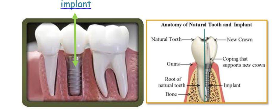 macam-macam gigi tiruan3