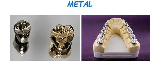 macam-macam gigi tiruan5