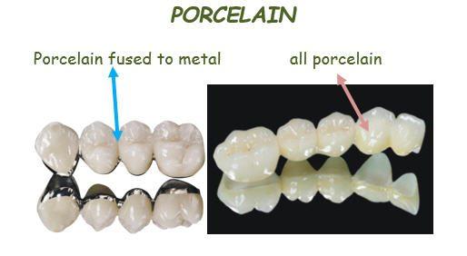 macam-macam gigi tiruan6
