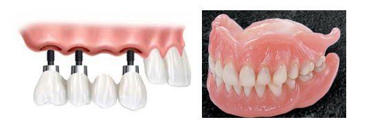 Macam-Macam Gigi Palsu – Bagian II
