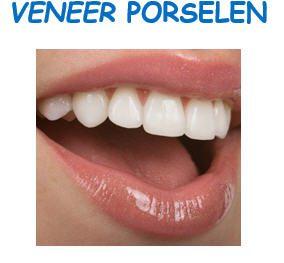 veneer teeth1