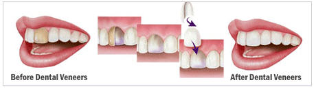 veneer teeth3