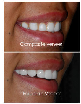 Veneers Porcelain vs Composite