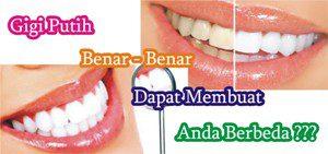 Apakah Gigi Putih Benar-Benar dapat Membuat Anda Berbeda?