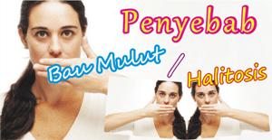 Apa sih Penyebab Bau Mulut yang Sangat Mengganggu ?