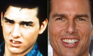 Tom-Cruise-teeth-before-after-cosmetic-dentistry
