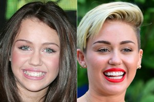 miley-cyrus-before-and-after-smile-makeover