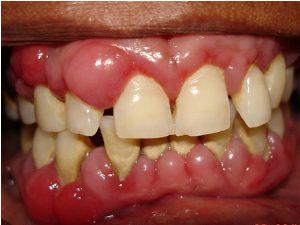 periodontitis1