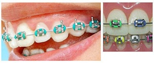 Self Ligating Braces VS Conventional Braces
