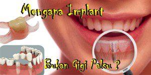Mengapa Harus Memasang Implant Bukan Memasang Gigi Palsu Saja?