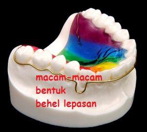 Macam-Macam Behel Lepasan (bagian 1)