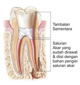 Fungsi Semen Untuk Perawatan Gigi