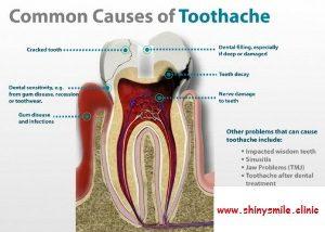 sakit gigi pindah2 6
