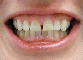 diastema gigi depan yang sangat menganggu penampilan