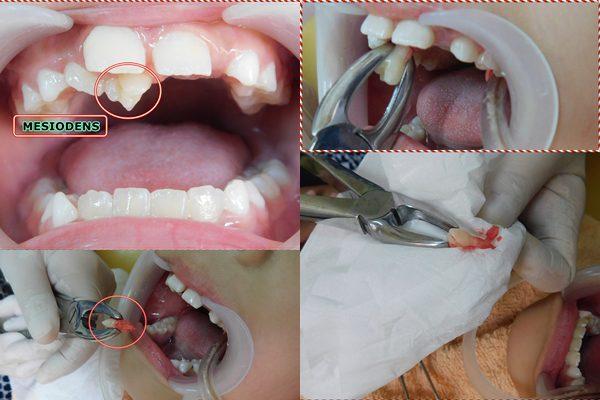 MESIODENS atau gigi kelebihan