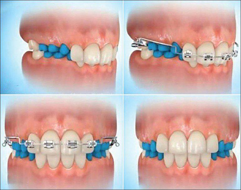 koreksi dari gigitan dalam menggunakan perawatan kawat gigi