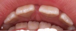 gigitan dalam adalah saat gigi rahang bawah bertemu dengan jaringan gusi rahang atas