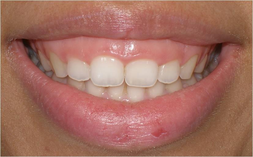 lebih dikenal dengan gummy smile