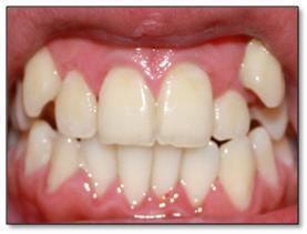 bentuk gigi yang acak