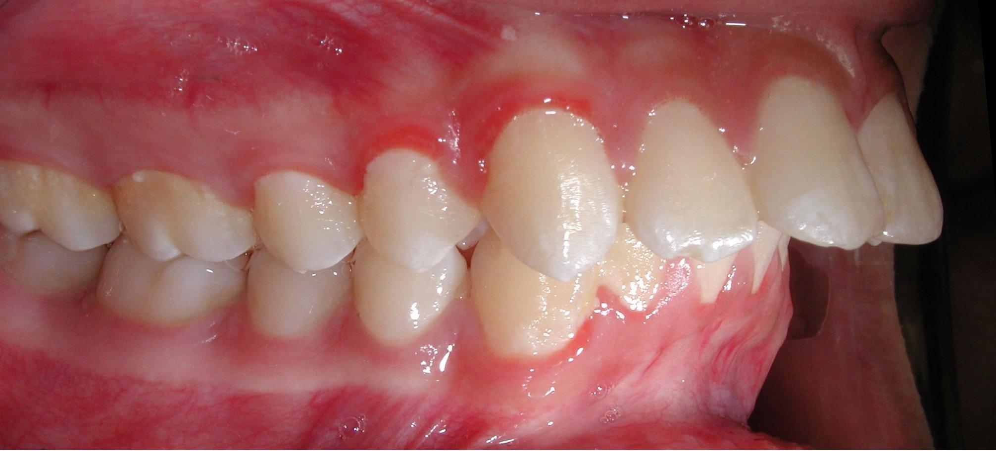 gigi maju (protrusion)