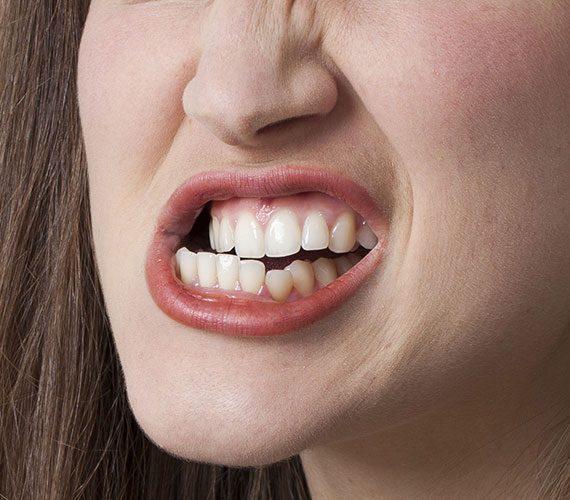 Punya Kebiasaan Menggertakkan Gigi pada Saat Tidur? Ini Penyebabnya