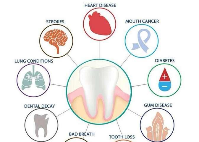 Inilah Penyakit yang Dapat Menyebabkan Terganggunya Kesehatan Mulut