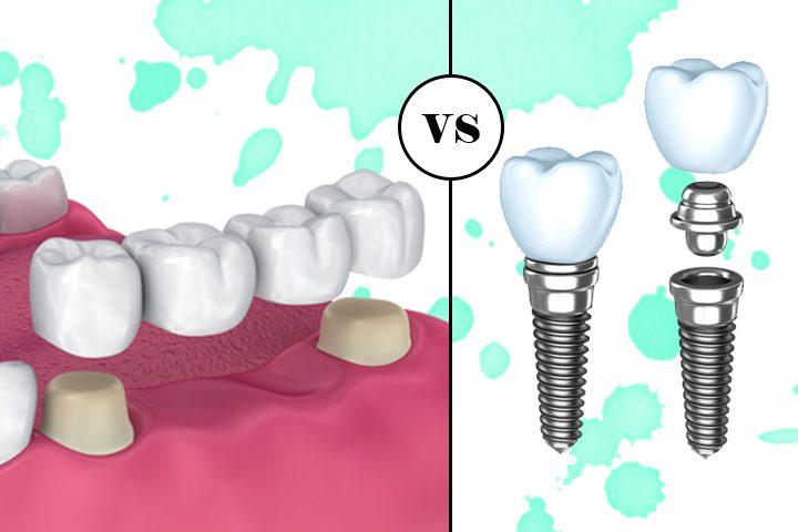 Implan Gigi dan Dental Bridge, Mana yang Lebih Baik?
