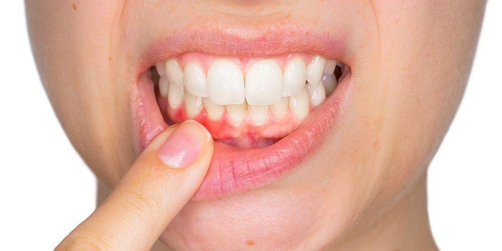Bagaimana Caranya Untuk Mengetahui Adanya Gangguan Masalah Mulut Akibat Diabetes?