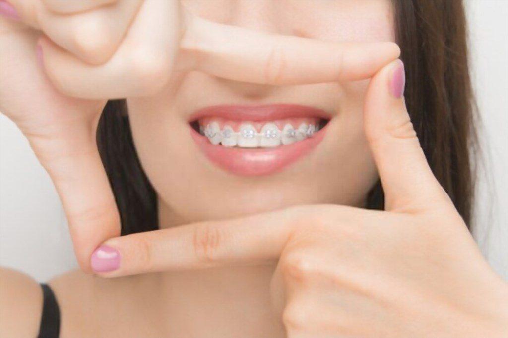 Pasang Kawat Gigi, Ternyata Tak Hanya Biaya yang Harus Dipertimbangkan