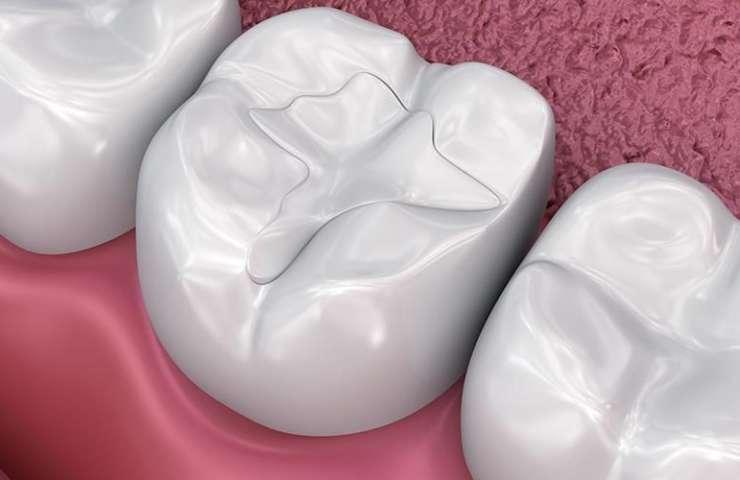 Mengapa Tambalan Permanen Gigiku Mudah Lepas? (Part 1)