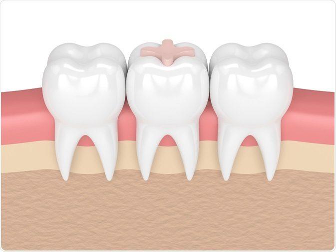 Mengapa Tambalan Permanen Gigiku Mudah Lepas? (Part 2)